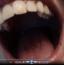 [Image: Lollipop oral examination]